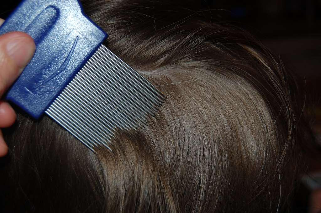 чистка волос от вшей гребнем